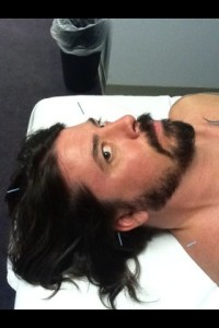 Dave Grohl receiving acupuncture